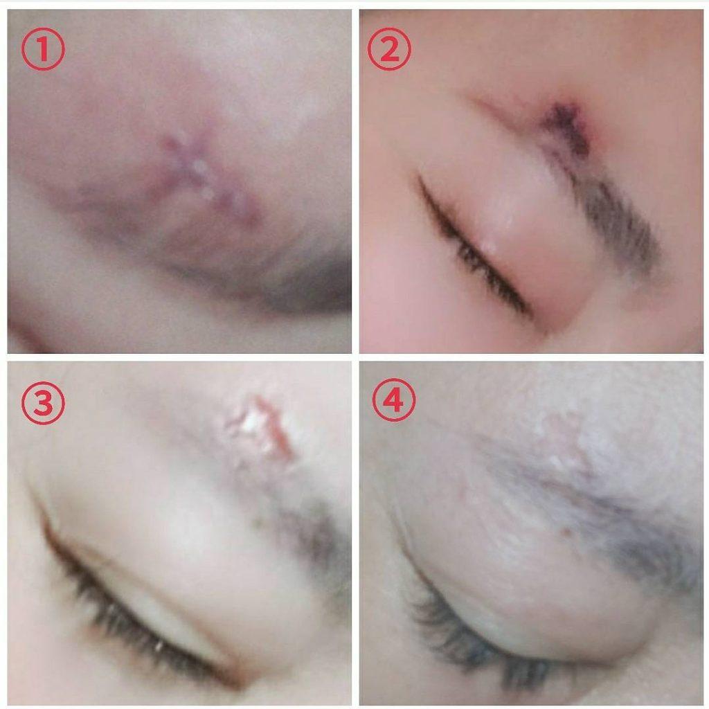 サロン 神戸 眉毛 【体験レポ】初めての眉毛サロン、どんな施術されるの?
